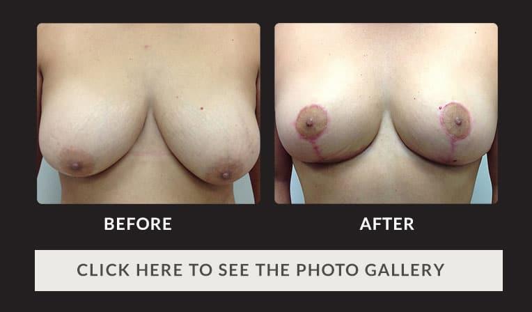Dianna zubiri naked photos