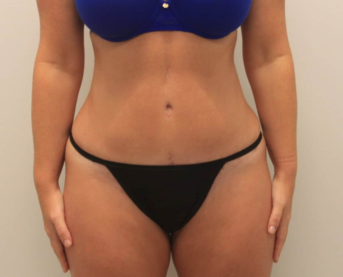 The Perfect Pairing: the SMART Tummy Tuck and 360-Degree Liposuction